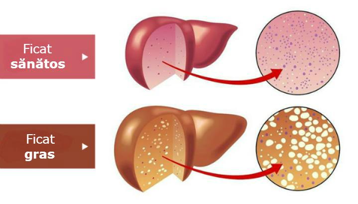Boala ficatului gras alcoolic si non alcoolic